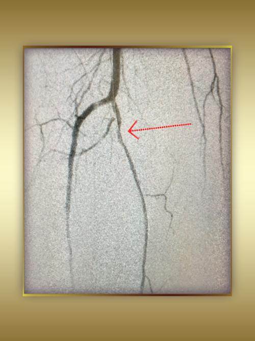 Left Iliac Artery Total Occlusion Recanalization AFTER