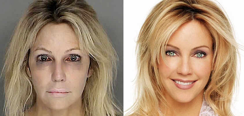 Heather Locklear Checks into Rehab Treatment