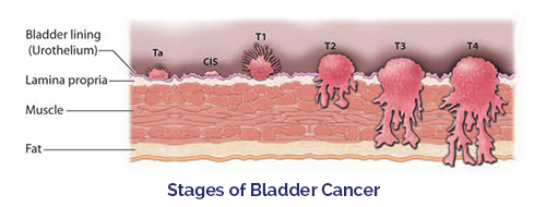 Diagram showing the stages of cancer