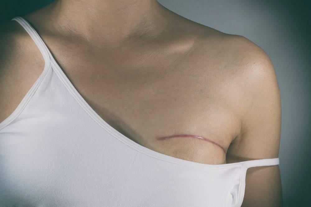 Mastectomie bilatérale prophylactique avec reconstruction immédiate : quel taux de satisfaction ?