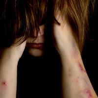 Mutilations génitales féminines aux Etats-Unis : tristement d'actualité