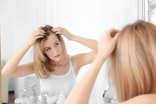 L'alopécie féminine altère la qualité de vie