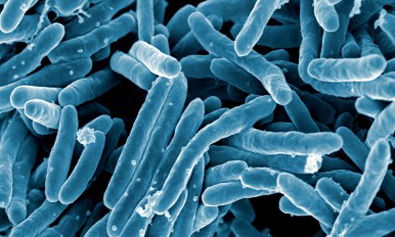 Prévalence de la tuberculose selon le sexe et la tranche d'âge au Portugal