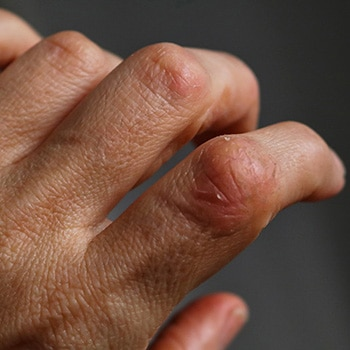 Les femmes atteintes de rhumatisme psoriasique répondent moins bien aux anti-TNF