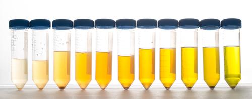 Le protéome urinaire : une question de genre ?