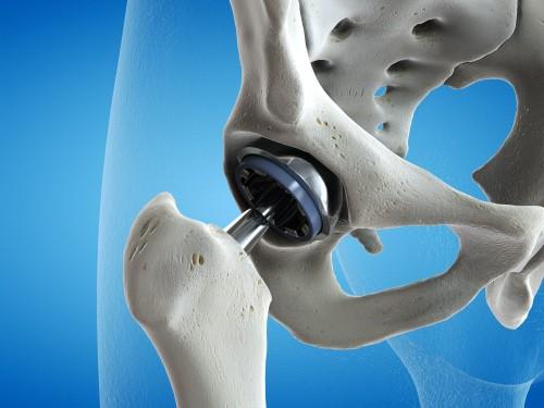 Arthroplastie totale de hanche ou du genou : certaines complications post-opératoires liées au genre