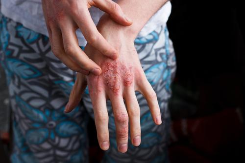 Psoriasis sous biothérapie:  les femmes ont plus d'infections aigües que les hommes