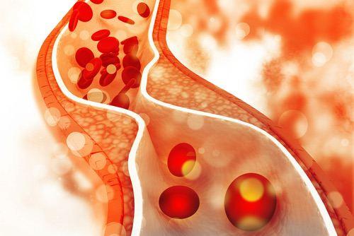 Syndromes coronaires aigus : les interactions entre le genre et la bithérapie antiplaquettaire mal connues