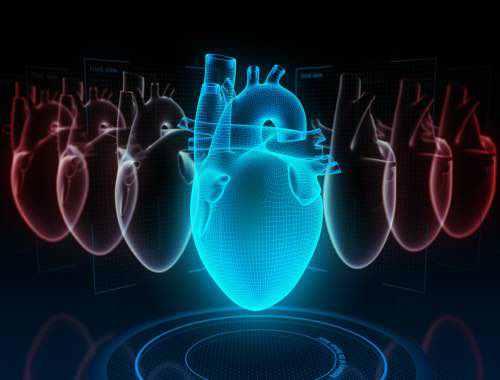 Insuffisance cardiaque de la cardiomyopathie hypertrophique chez la femme