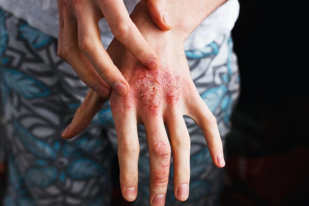 Le prurit est plus fréquent et plus sévère chez les femmes