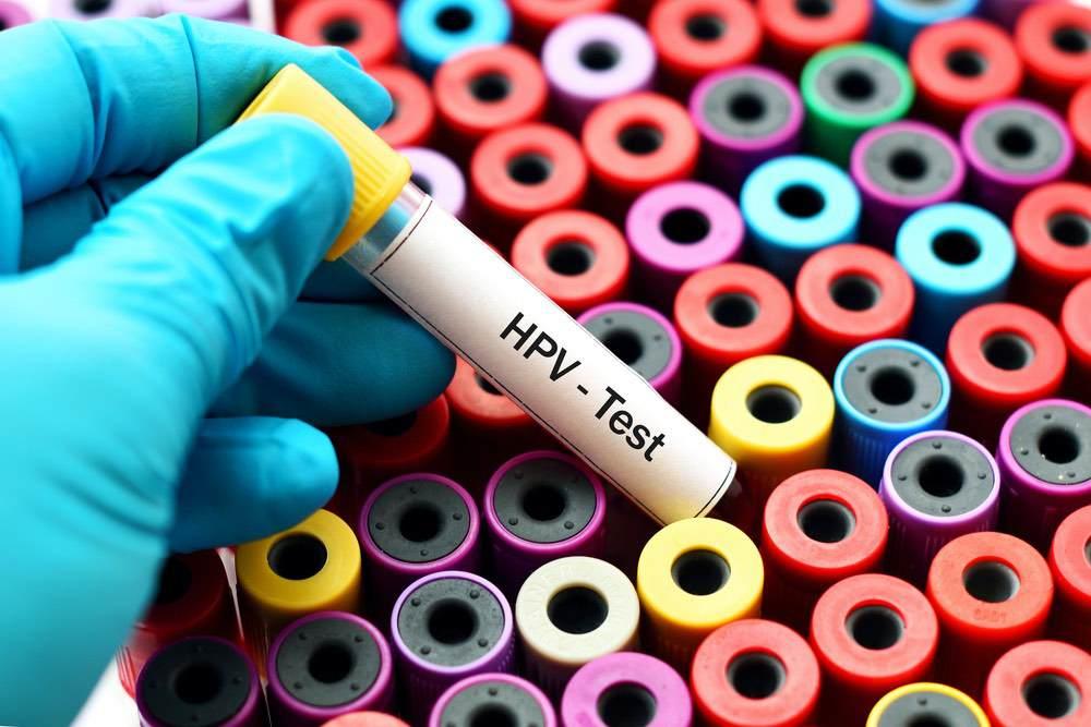 Remplacement du frottis par le test HPV pour le dépistage organisé : premiers résultats aux Pays-Bas