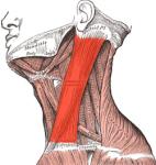 Sternocleidomastoideus