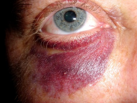 Eye Injury Incidents, Construction
