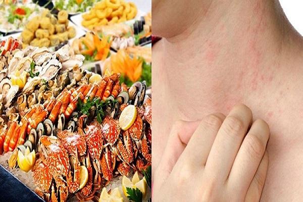 Bệnh viêm da tiếp xúc là gì? Nguyên nhân, biểu hiện và cách điều trị hiệu quả