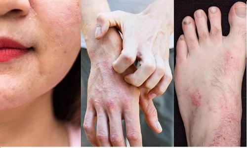 Viêm da cơ địa ở người lớn: Tác nhân gây bệnh và hướng chữa trị tốt nhất
