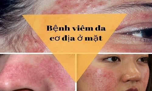 Viêm da cơ địa ở mặt, môi gây tróc vẩy, lột da nên làm gì?