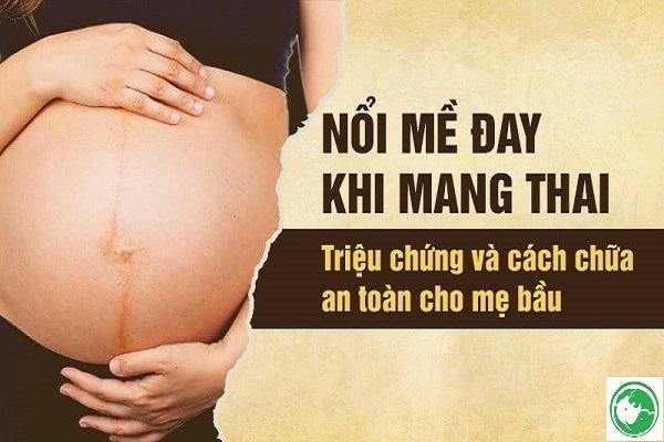 Nổi mề đay khi mang thai 3 tháng đầu, tháng cuối và cách xử lý