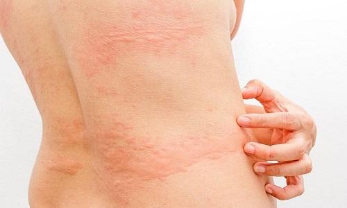 Nổi mề đay ở lưng, bụng và những vấn đề cần bệnh nhân xử lý