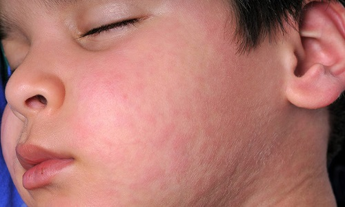 Nổi mề đay ở mặt: Nguyên nhân và cách trị bệnh hữu hiệu nhất