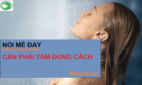 Bị nổi mề đay có được tắm không và tắm lá gì tốt nhất?
