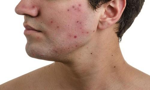 Cách trị mụn cho nam giới da dầu ở tuổi dậy thì tại nhà