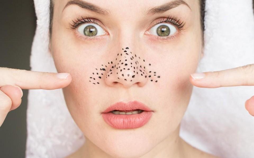 Cách trị mụn đầu đen ở mũi tại nhà hiệu quả tận gốc