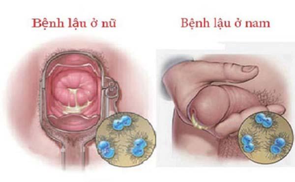 Bệnh lậu ở nam và nữ giới