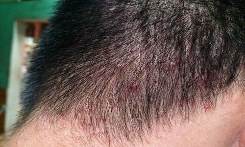 Bệnh thủy đậu mọc trên đầu: Đặc điểm và cách chữa trị nhanh