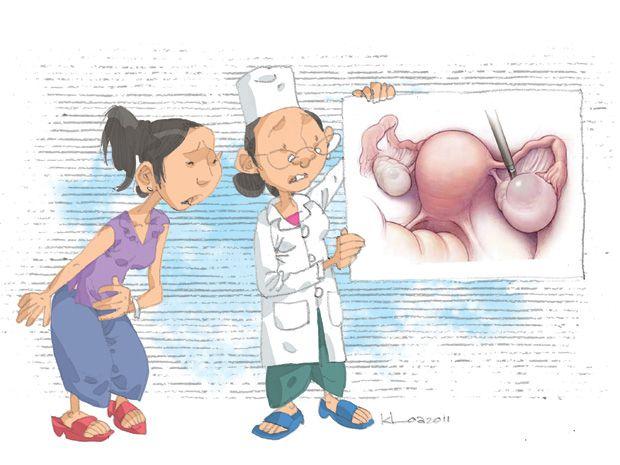U nang buồng trứng có nguy hiểm không