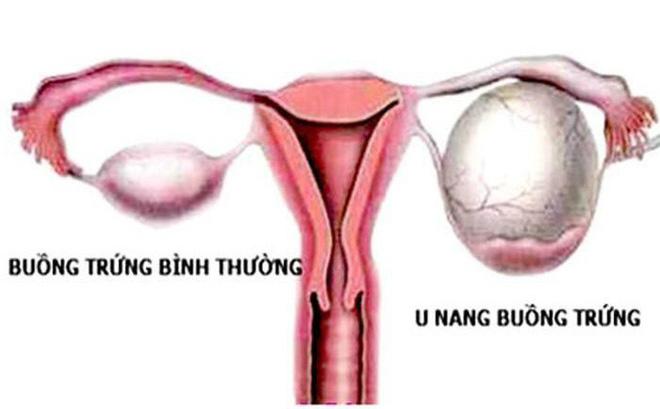 Hình ảnh bệnh phụ khoa nữ