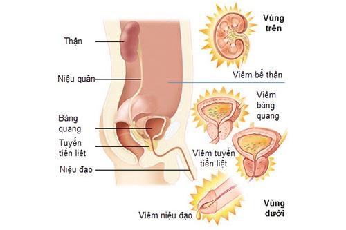 Chảy máu vùng kín do nhiễm khuẩn đường tiểu