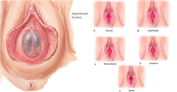20 hình ảnh màng trinh chưa rách ở nữ giới