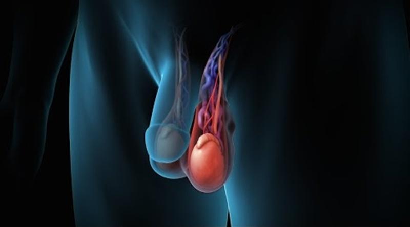 Giãn tĩnh mạch thừng tinh có chữa khỏi được không