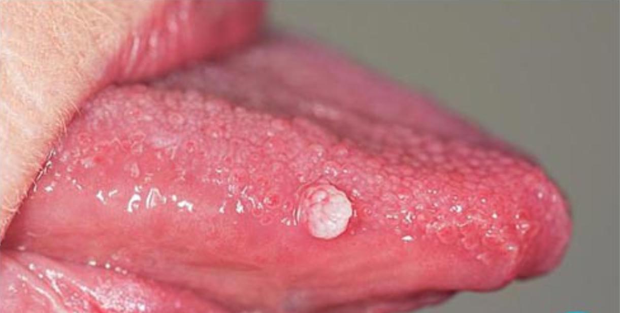 cách chữa bệnh sùi mào gà ở lưỡi