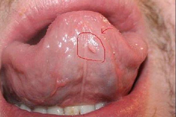Cách trị sùi mào gà ở lưỡi tại nhà