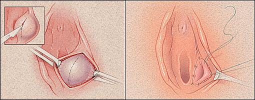 Hình ảnh viêm tuyến Bartholin chi tiết nhất