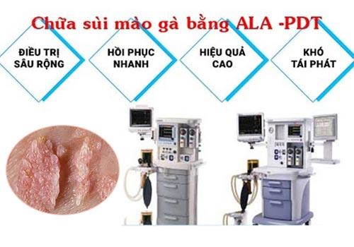 Chi phí điều trị sùi mào gà ở Bệnh viện Da liễu bao nhiêu tiền
