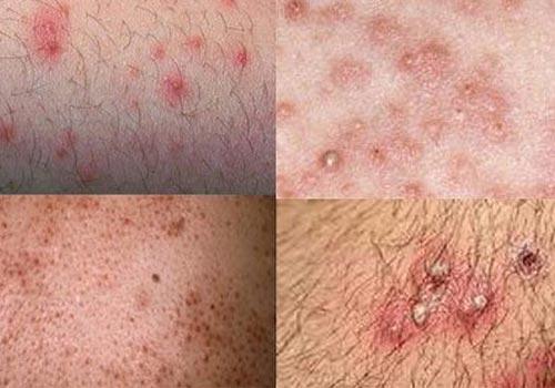 10 Kem bôi trị viêm nang lông vùng kín tại nhà hiệu quả