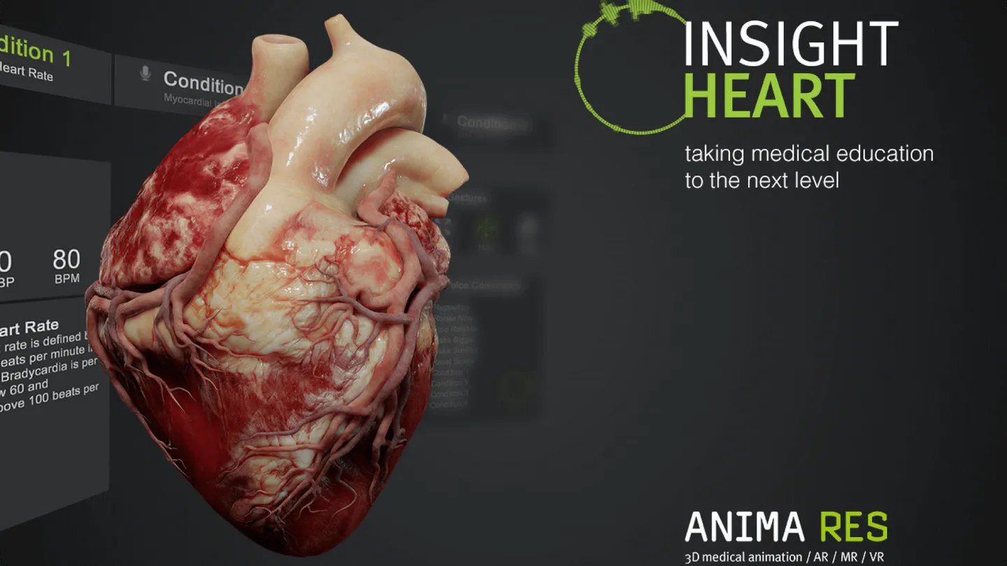 Insight Heart is a mixed reality app for Magic Leap 1 for visualizing various cardiovascular diseases