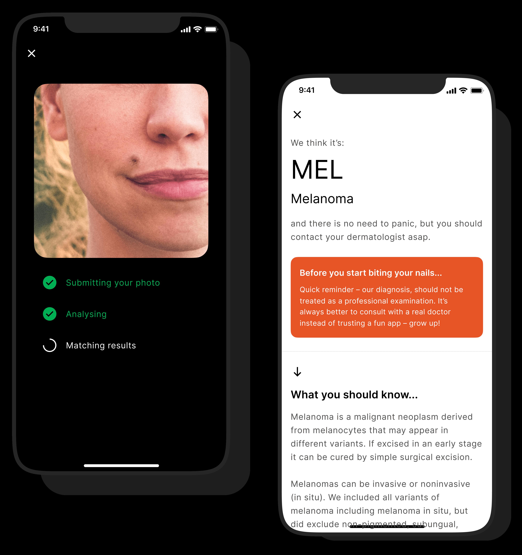 melanoma spotter