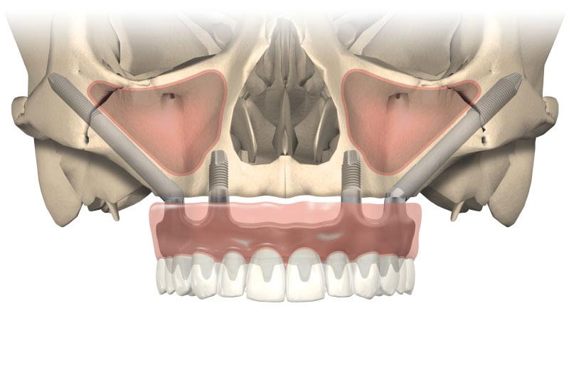 3D Illustration von Zygoma Implantaten