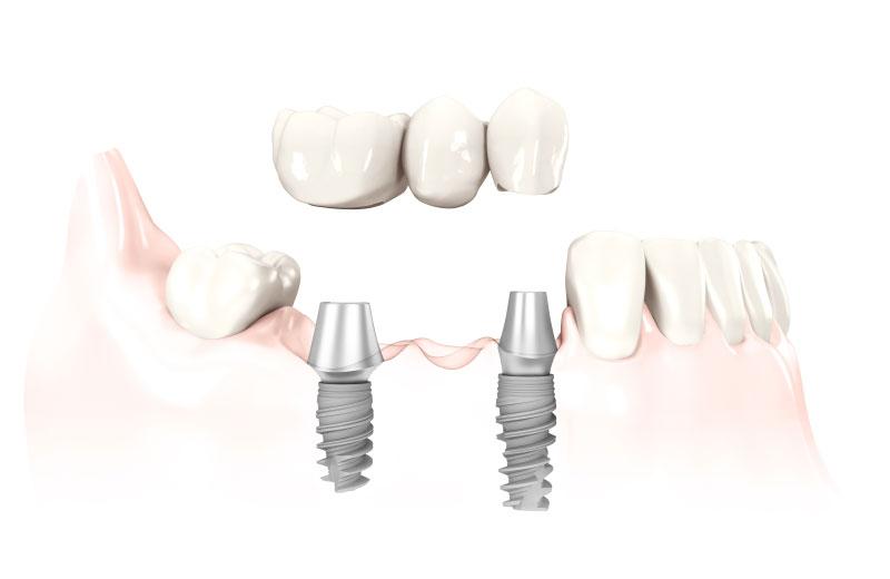 3D Illustration von klassischen Implantaten