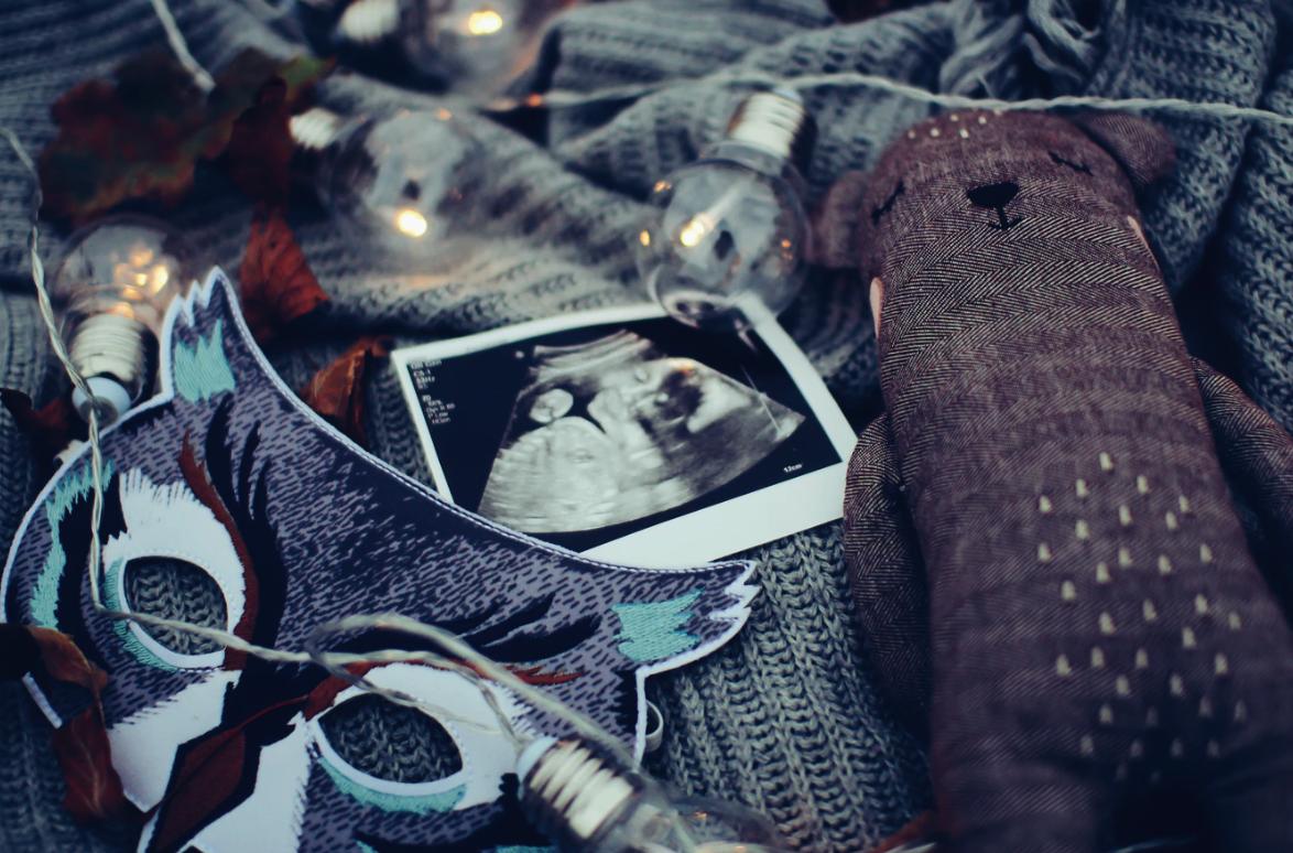 Fertility and Hypothyroidism