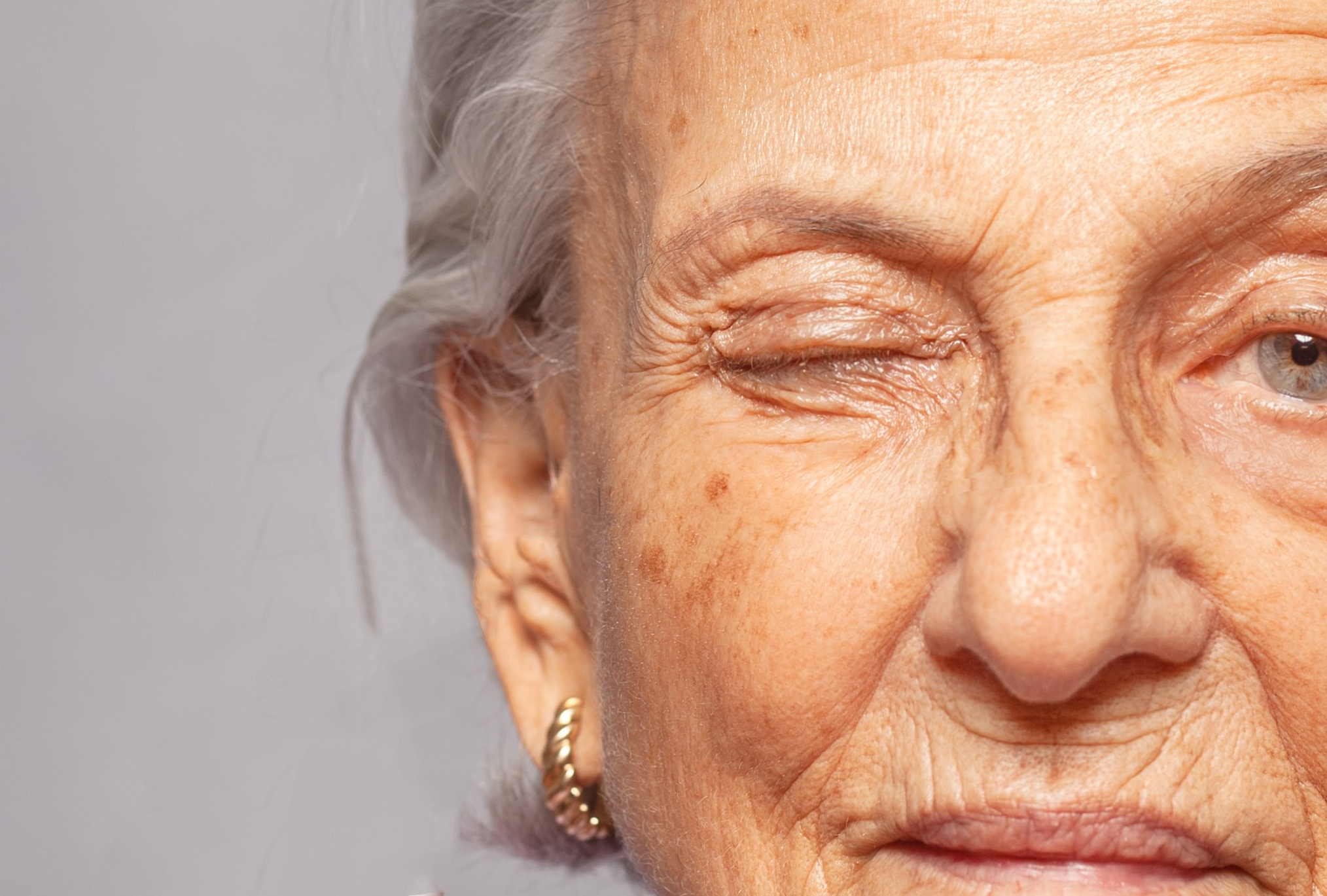 Is Botox Safe To Use With Hashimoto's?