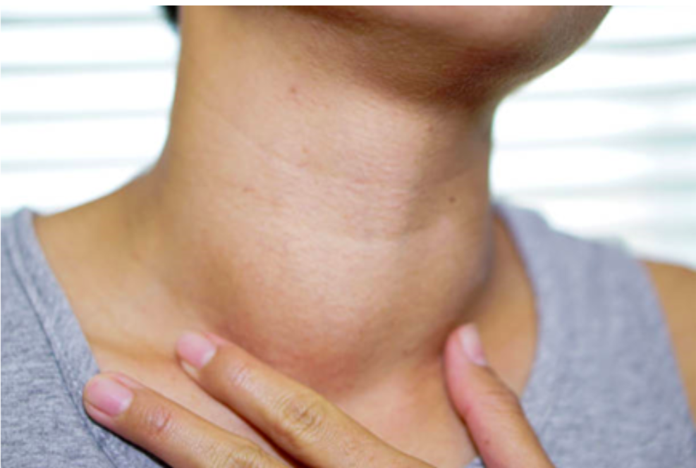 How To Shrink A Goiter