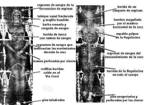 heridas del cuerpo de sabana santa