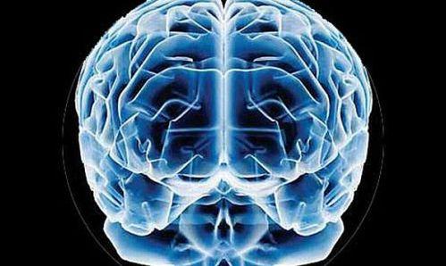 escaneo-del-cerebro
