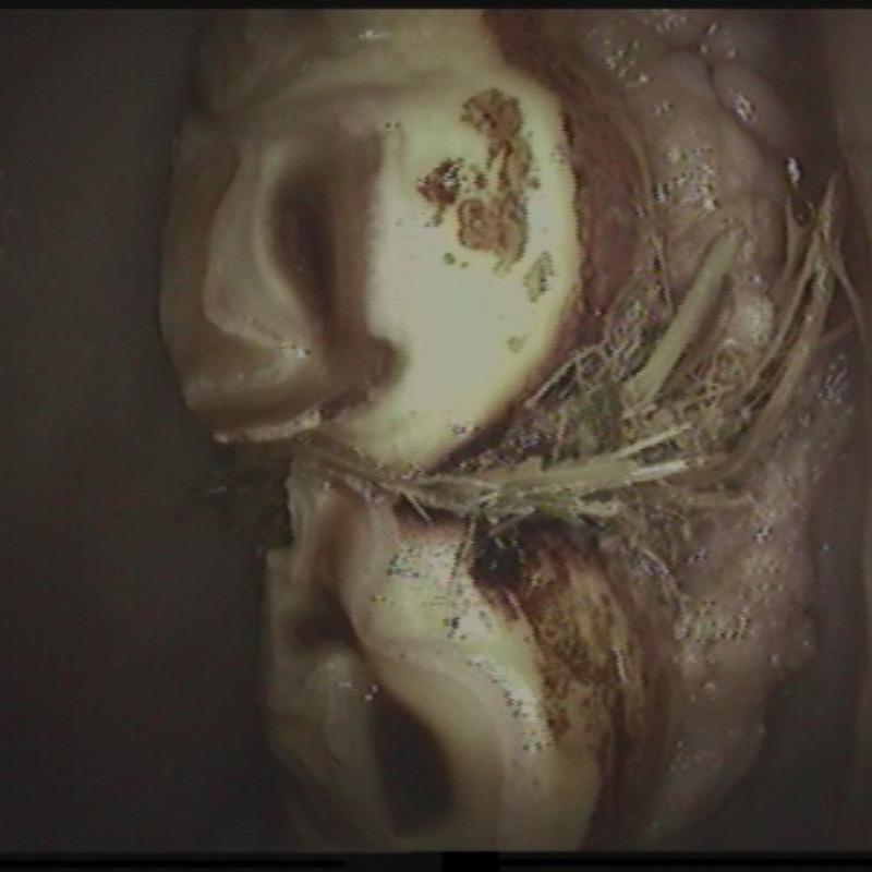 Diasthema aufschleifen