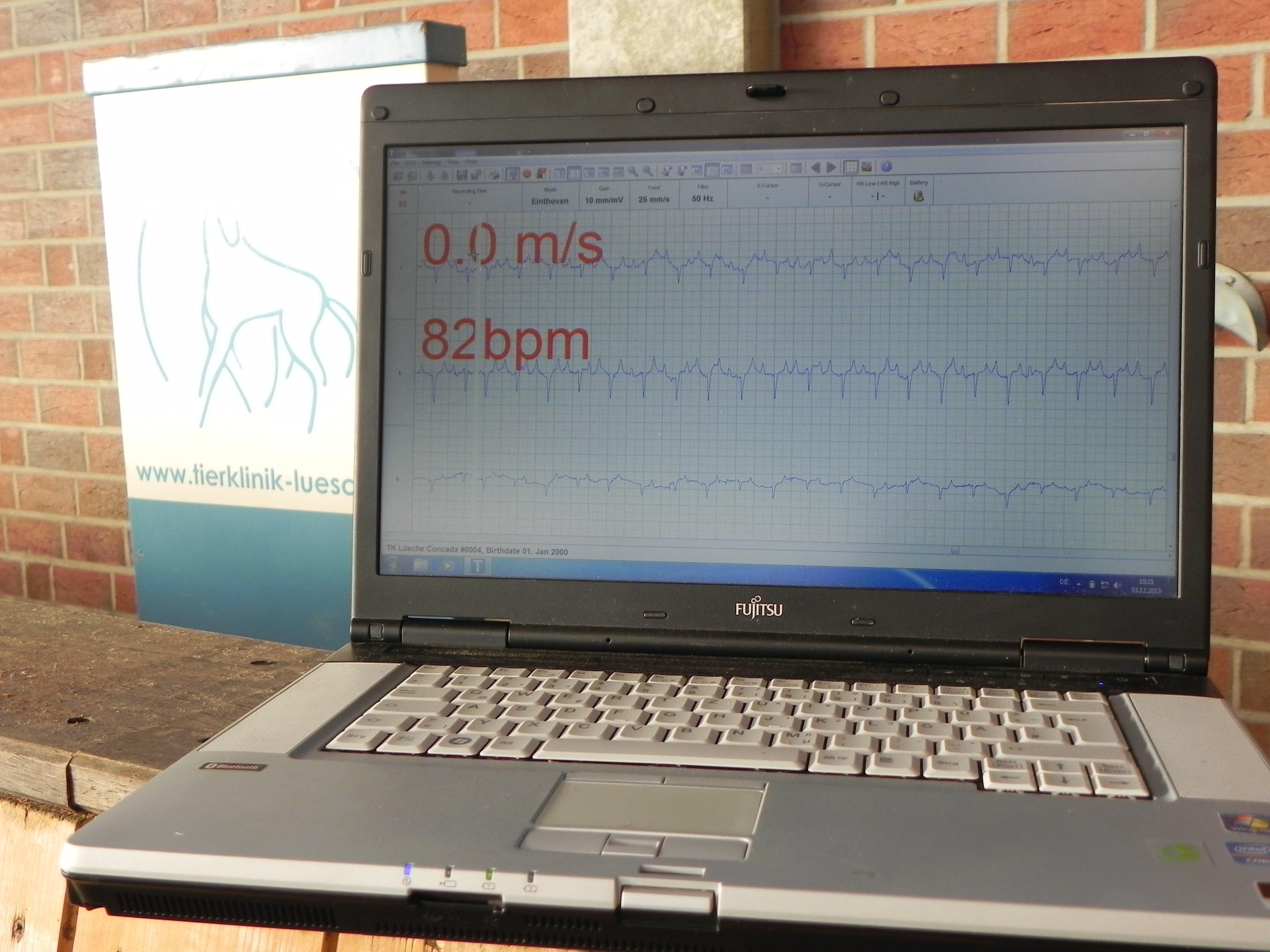 Belastungs-EKG, Betrachtung während Aufnahme