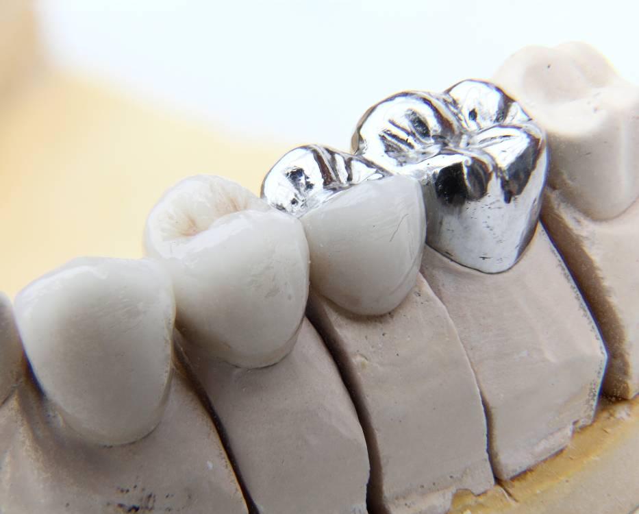 Zahnbrücke steht auf dem Modell
